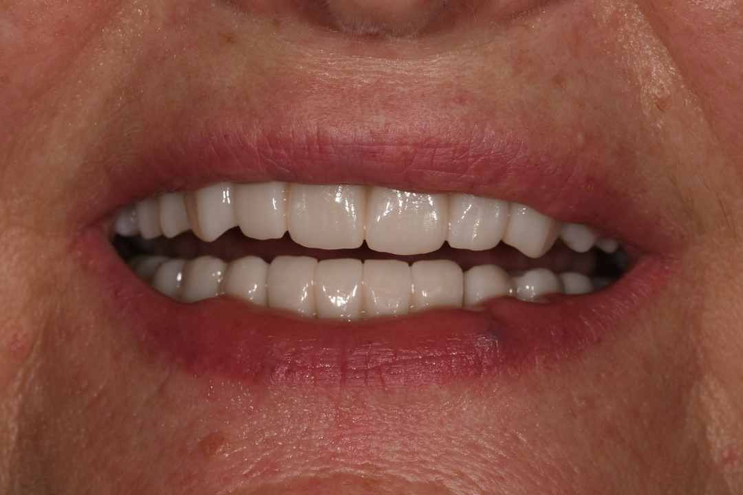 Patient: Woman, 53 years old, Full Mouth Restoration